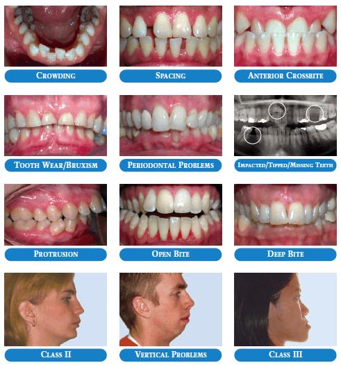 Common Problems - Adult Orthodontics