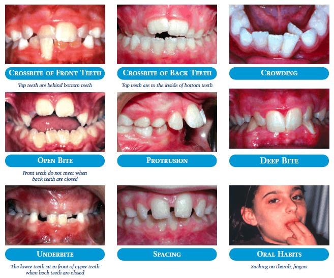 Common Problems - Kids Orthodontics