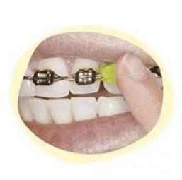 life with braces - gishy goo