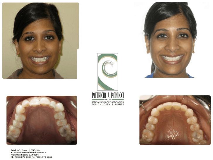 Invisalign Before & After Tina 2