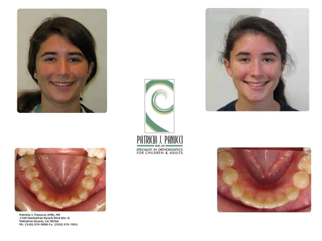 Invisalign Before & After