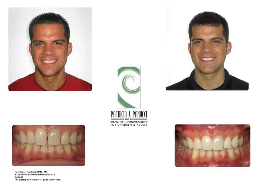 Adam W before and after orthodontic invisalign treatment