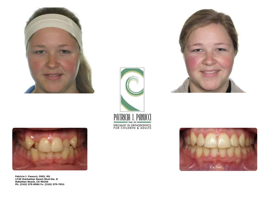 Cynthia M before and after orthodontic invisalign treatment
