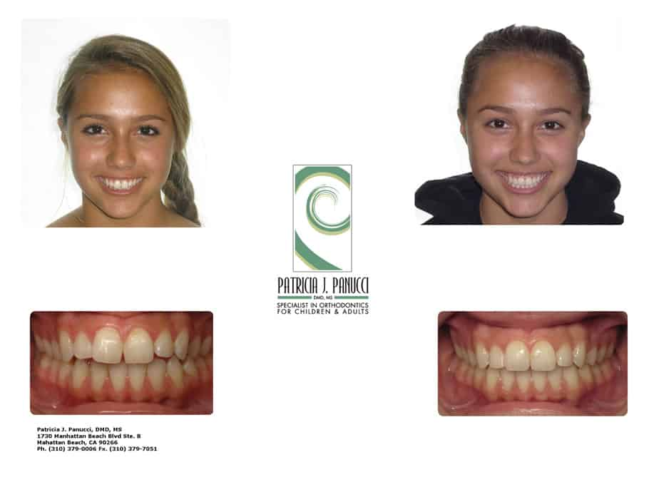 Emma O before and after orthodontic invisalign treatment