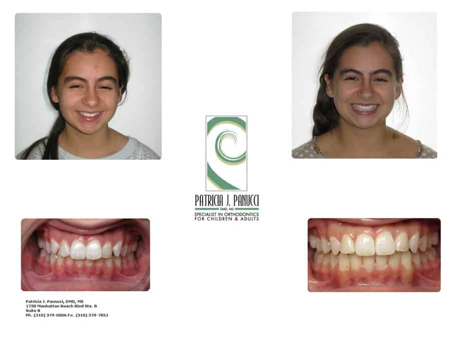 Gabriela before and after orthodontic invisalign treatment