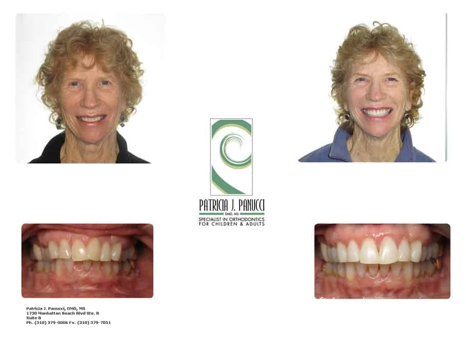 Judy B before and after orthodontic invisalign treatment