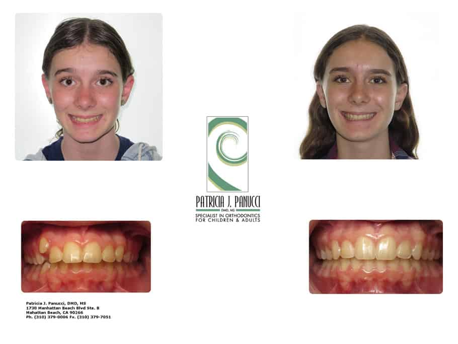Julia M before and after orthodontic invisalign treatment
