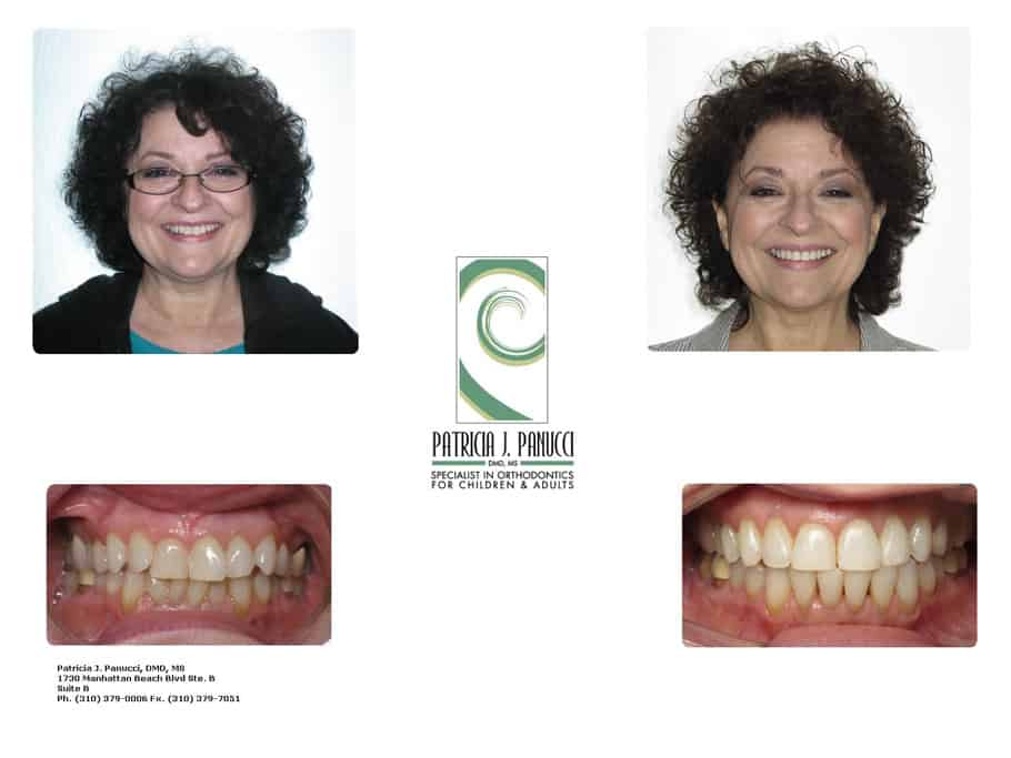 Laurel I before and after orthodontic invisalign treatment