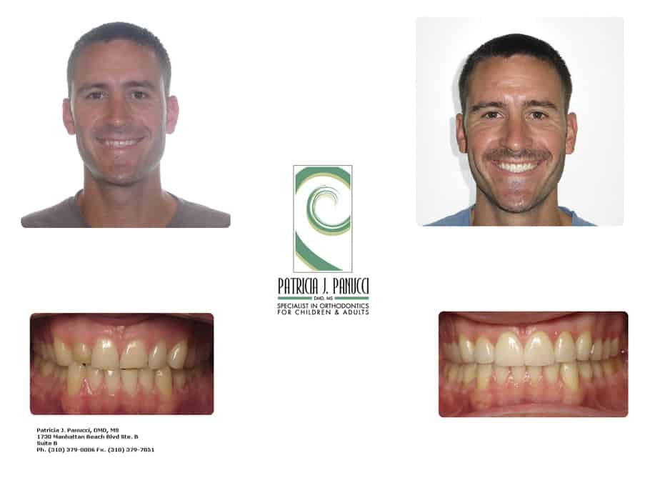 Mark A before and after orthodontic invisalign treatment