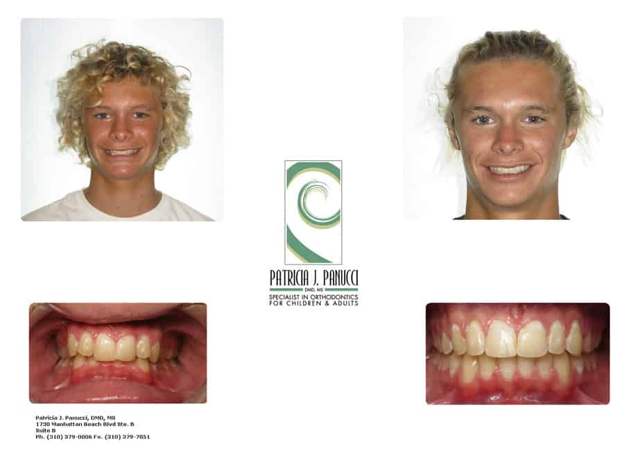 Matt H before and after orthodontic invisalign treatment