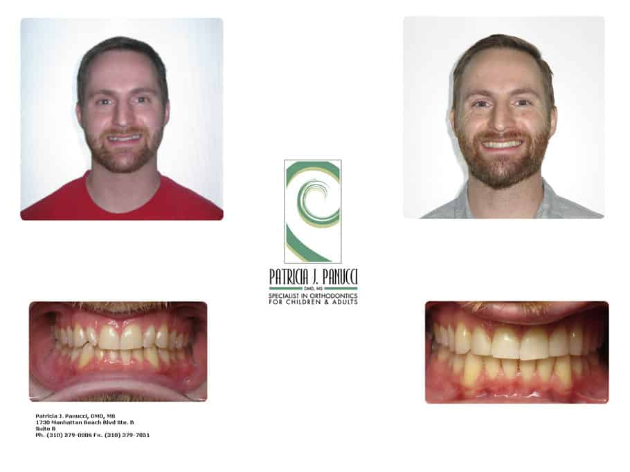 Michael Z before and after orthodontic invisalign treatment