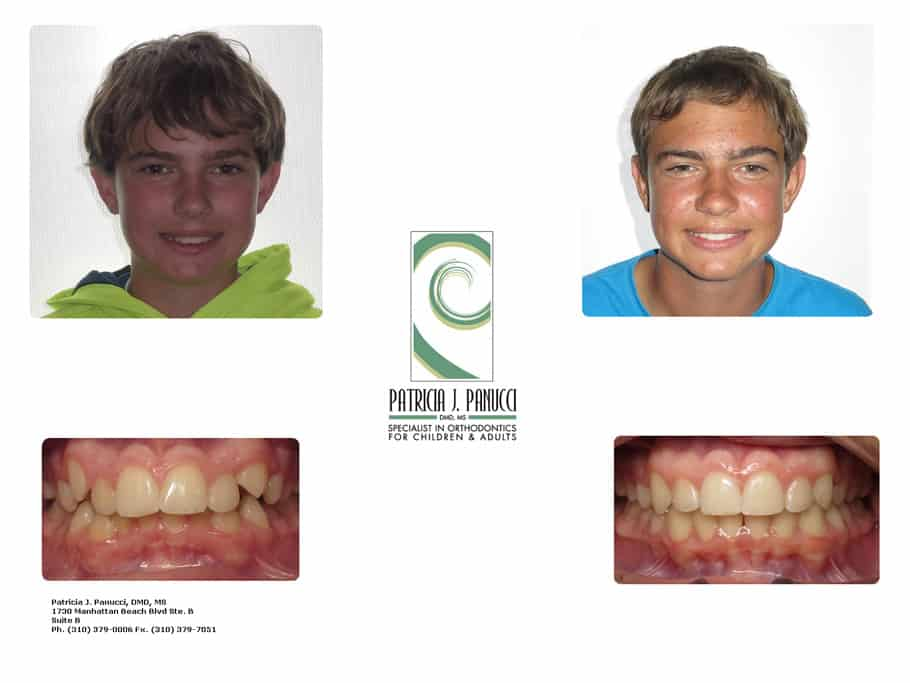 Oliver M before and after orthodontic invisalign treatment