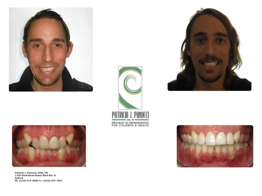 Roy P. before and after orthodontic invisalign treatment
