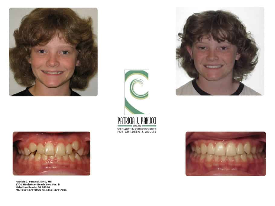 Steven O before and after orthodontic invisalign treatment
