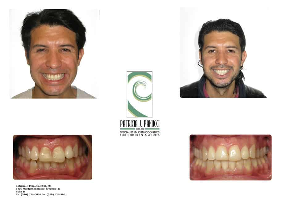 Rey P. before and after orthodontic invisalign treatment