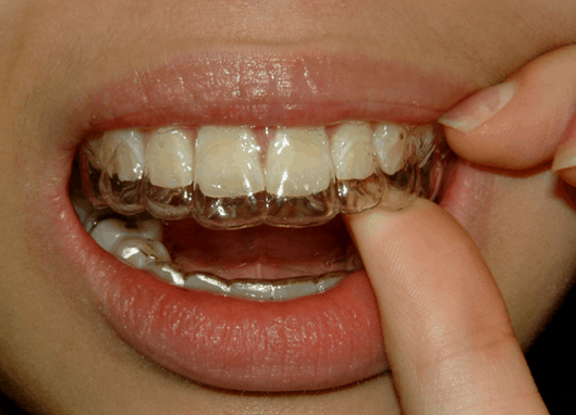 how to clean your teeth before dentist