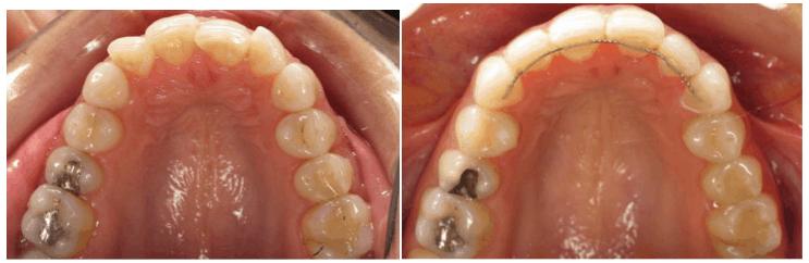 yuni o lingual braces