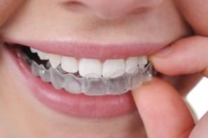 Beach Braces, Orthodontist Manhattan Beach, Orthodontics