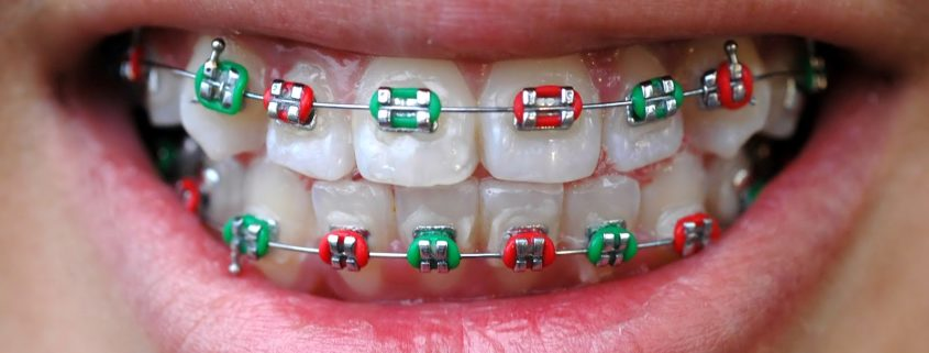 braces colors