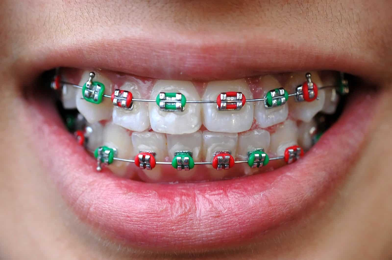 Colored Braces Beach Orthodontic Specialists