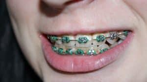 braces close up