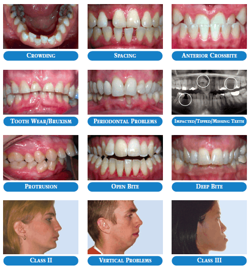 Are Info on braces for adults